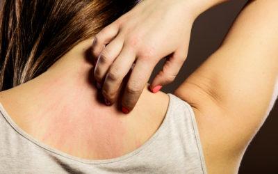 Dermatitis Atópica: causas, factores de riesgo y soluciones