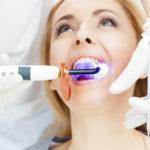 Blanqueamiento Dental: Qué es y qué tipos hay