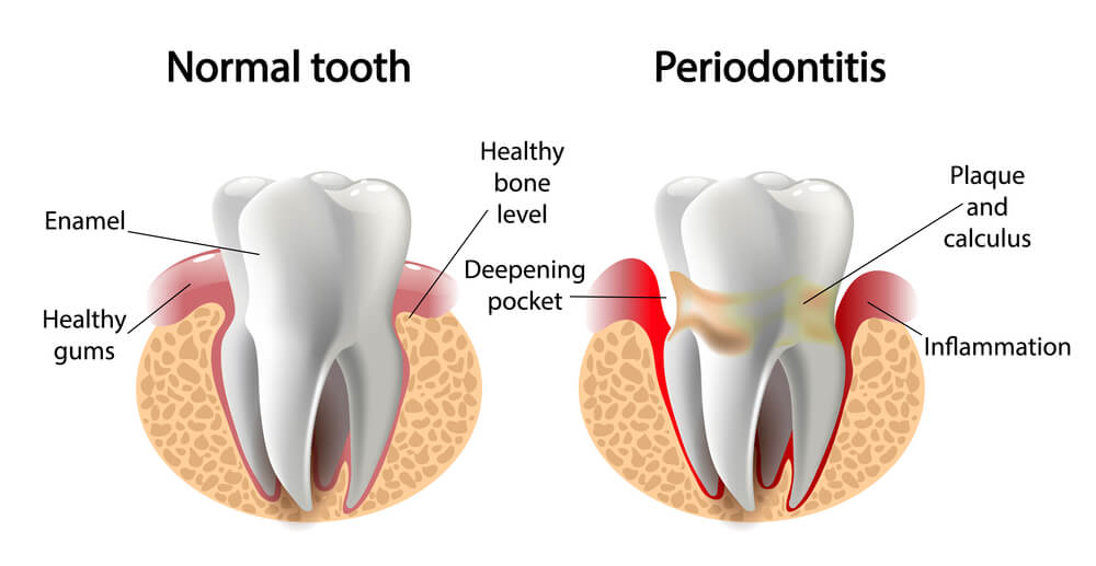 ¿Qué es y cómo tratar y prevenir la Periodontitis?