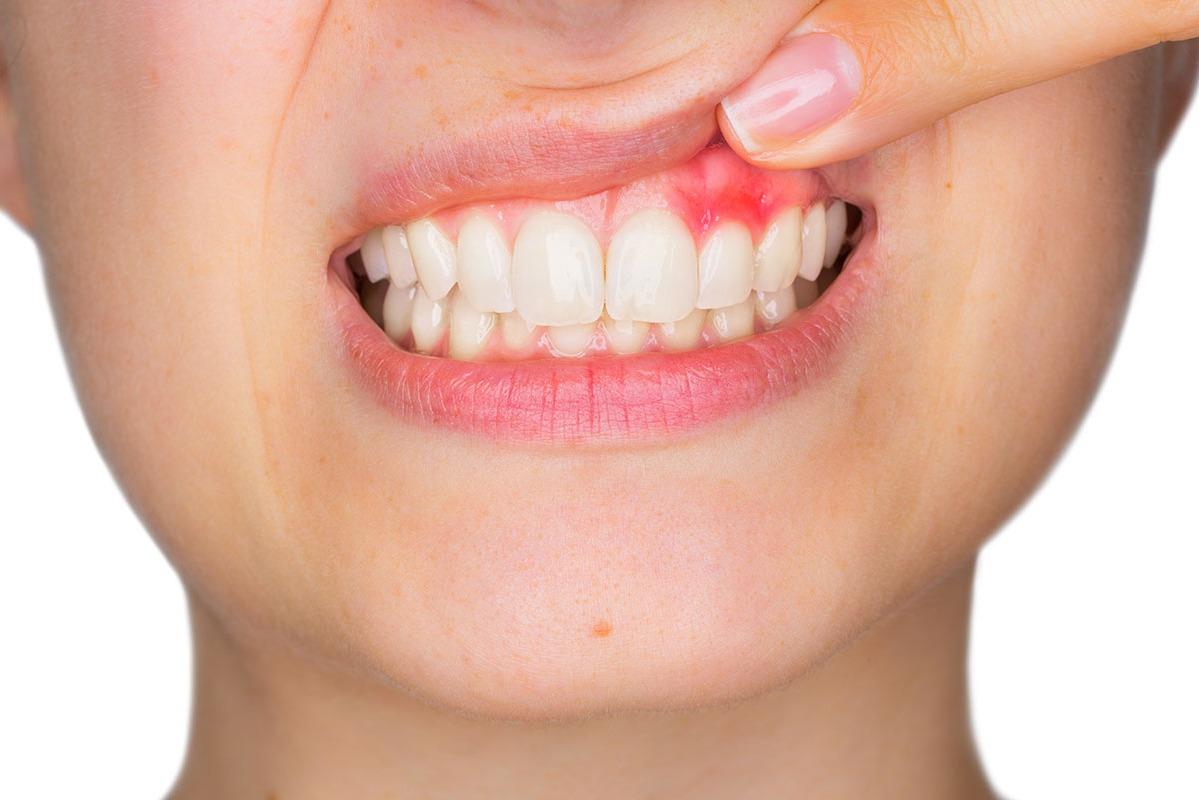 periodontitis sintomas enfermedad
