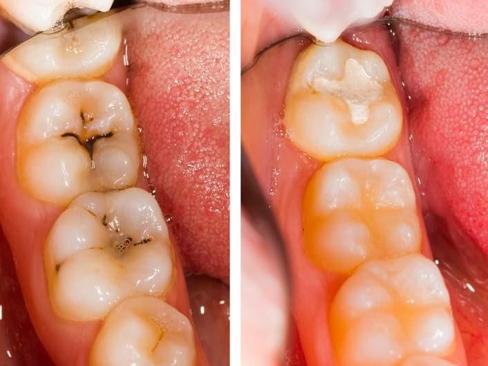 antes y después empaste dental
