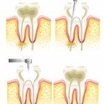 No me duele nada, ¿por qué tengo que hacerme una endodoncia?