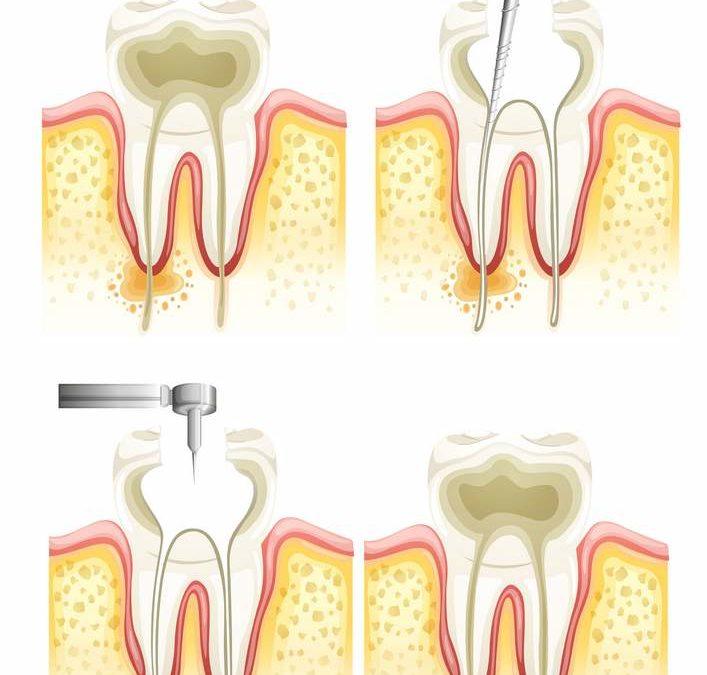 endodoncia diente