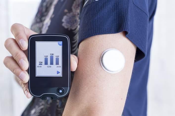 sistema de monitorización continua de glucosa